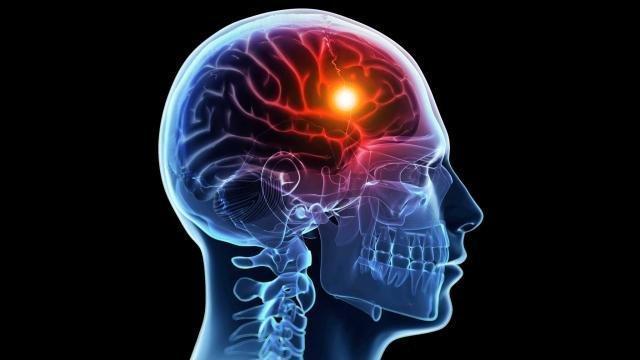 در هر پنج دقیقه یک ایرانی سکته مغزی می نماید