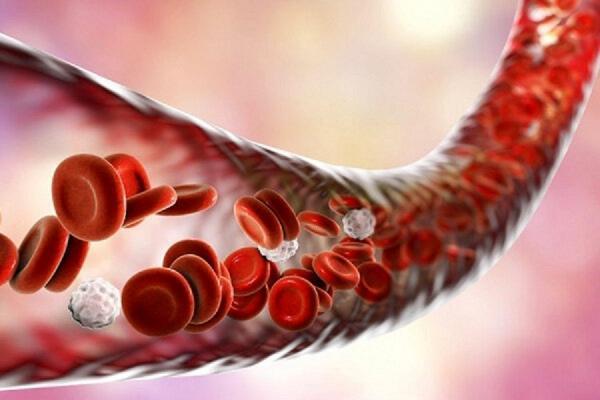 بیست و چهارمین عمل پیوند سلول های بنیادی با خون بند ناف